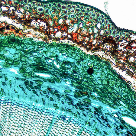 microscopic view of tree structure and cells